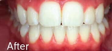 Cosmetic Ortho After 1