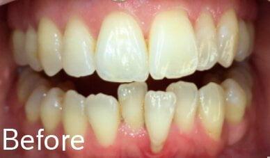 Cosmetic Ortho Before 2