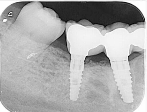 Implant Bridge C1