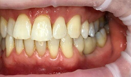 Single Implant B1