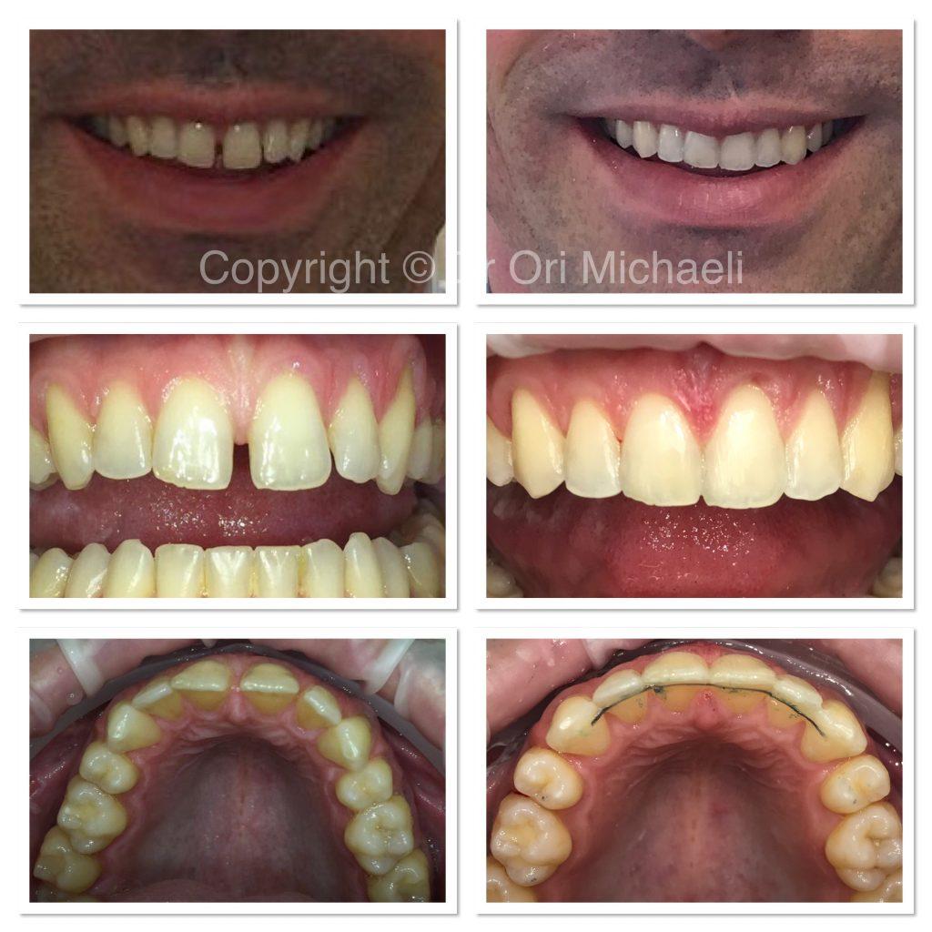 Wallisdown Dental Practice Reviews 16 1024x1024