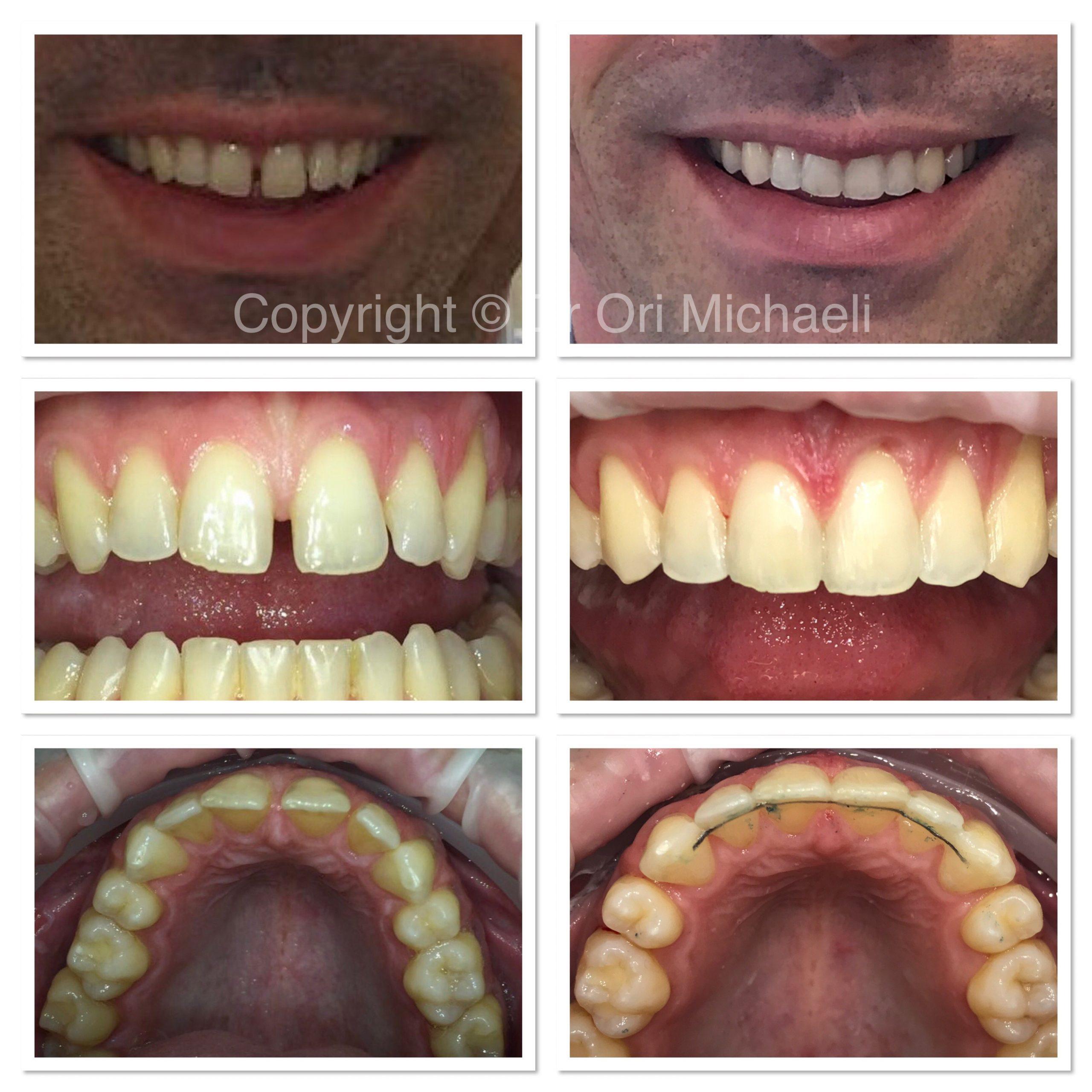 Wallisdown Dental Practice Reviews 16 Scaled