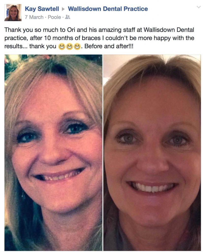 Wallisdown Dental Practice Reviews 19 825x1024