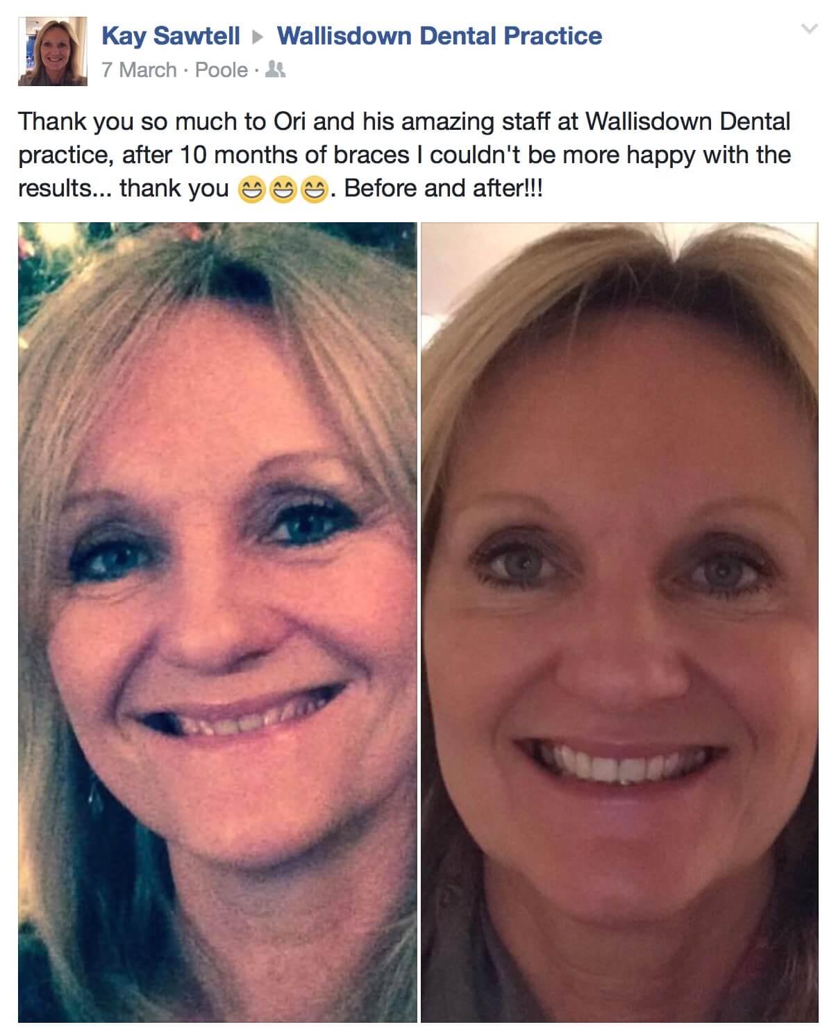 Wallisdown Dental Practice Reviews 19