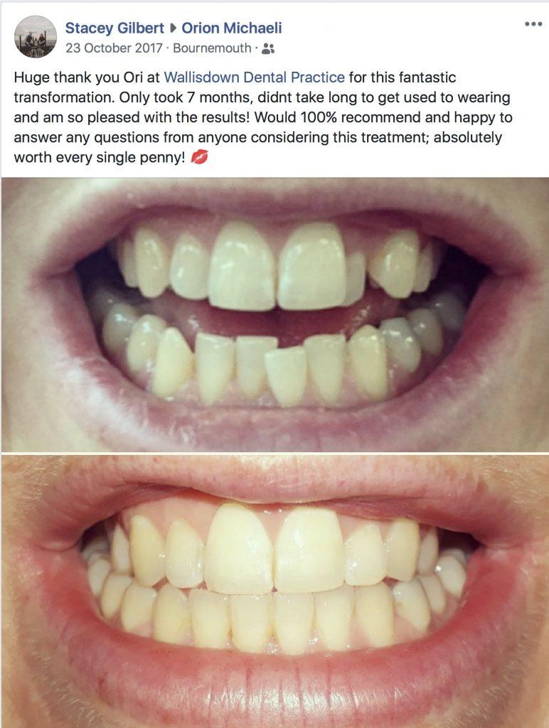 Wallisdown Dental Practice Reviews 59 772x1024