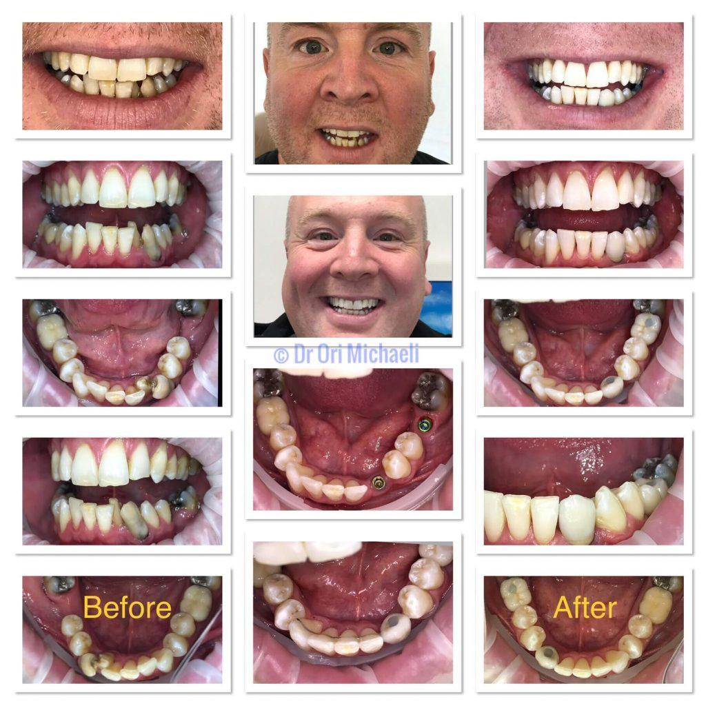 Wallisdown Dental Practice 5 1024x1024