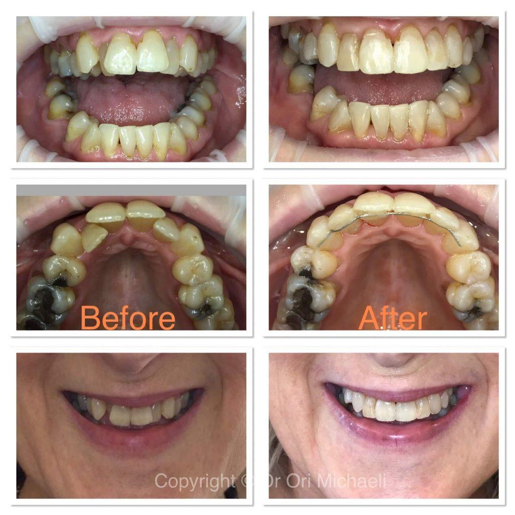 Wallisdown Dental Practice 8 1024x1024