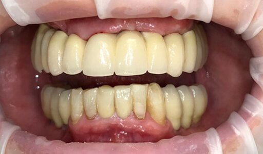 Full Arch Implants A2z